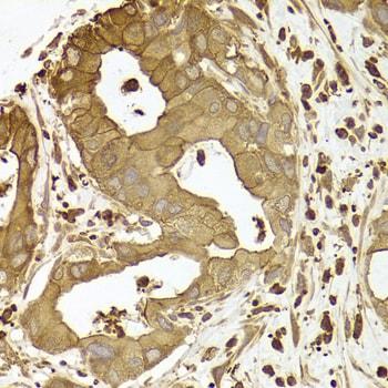 Arp2 Antibody in Immunohistochemistry (Paraffin) (IHC (P))