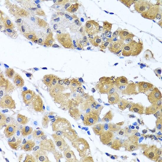 OGFR Antibody in Immunohistochemistry (IHC)
