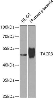 TACR3 Antibody in Western Blot (WB)