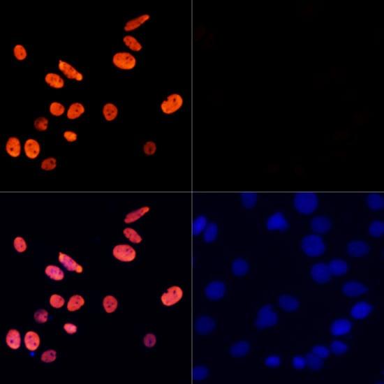 H3K27ac Antibody in Immunocytochemistry (ICC)