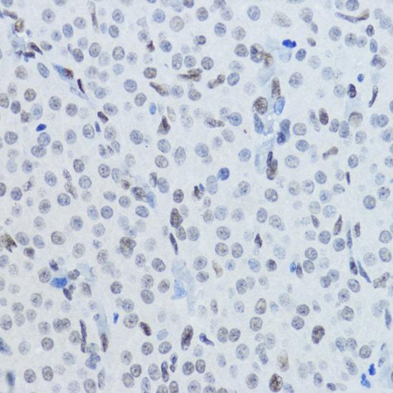 H3K27ac Antibody in Immunohistochemistry (IHC)