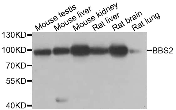 BBS2 Antibody in Western Blot (WB)
