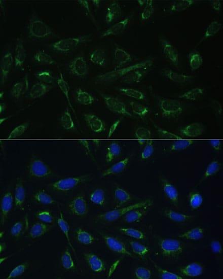 HCCS Antibody in Immunocytochemistry (ICC)