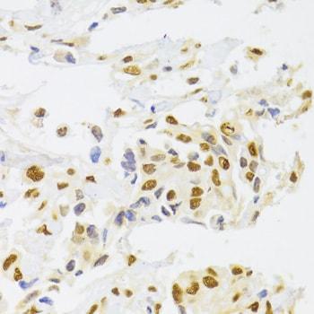 hnRNP A1 Antibody in Immunohistochemistry (IHC)