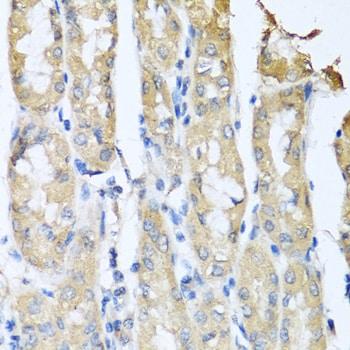 CCL3 Antibody in Immunohistochemistry (IHC)