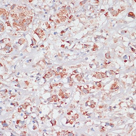 Desmoplakin Antibody in Immunohistochemistry (IHC)