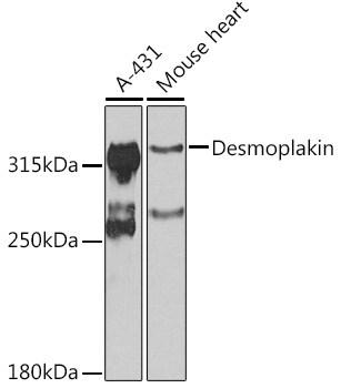 Desmoplakin Antibody in Western Blot (WB)