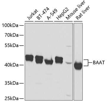 BAAT Antibody in Western Blot (WB)