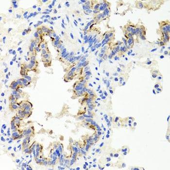 SHH Antibody in Immunohistochemistry (IHC)