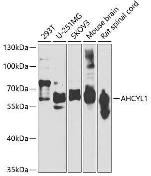AdoHcyase 2 Antibody in Western Blot (WB)