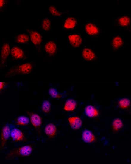 ADAR Antibody in Immunocytochemistry (ICC)