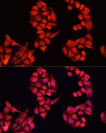 ALDH9A1 Antibody in Immunofluorescence (IF)