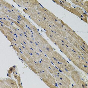 ALDH9A1 Antibody in Immunohistochemistry (Paraffin) (IHC (P))