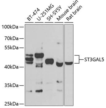 ST3GAL5 Antibody in Western Blot (WB)