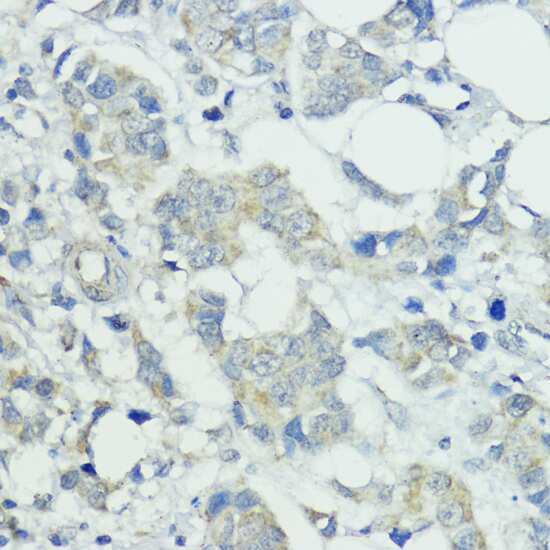 SOCS5 Antibody in Immunohistochemistry (IHC)