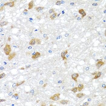 PIP4K2B Antibody in Immunohistochemistry (IHC)