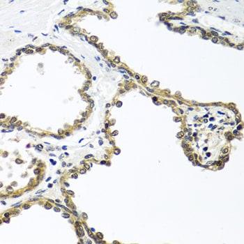Arylsulfatase F Antibody in Immunohistochemistry (Paraffin) (IHC (P))