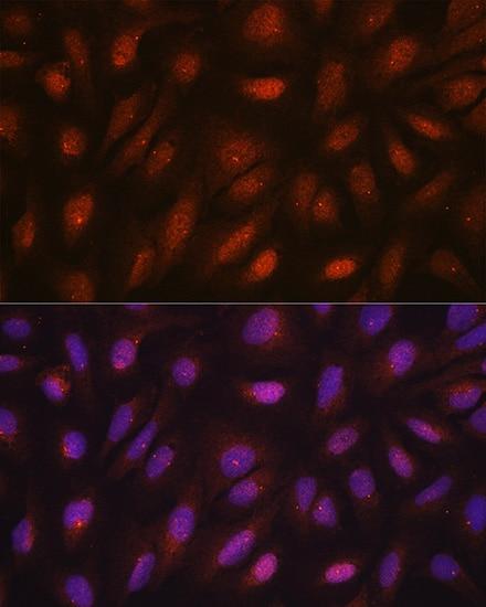 Centrin 3 Antibody in Immunocytochemistry (ICC/IF)