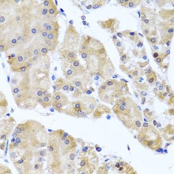 Centrin 3 Antibody in Immunohistochemistry (IHC)