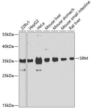 SRM Antibody in Western Blot (WB)
