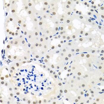 Nuclear Matrix Protein p84 Antibody in Immunohistochemistry (Paraffin) (IHC (P))
