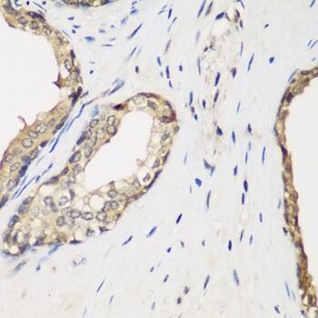 METTL7A Antibody in Immunohistochemistry (IHC)