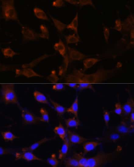 CAD Antibody in Immunocytochemistry (ICC)