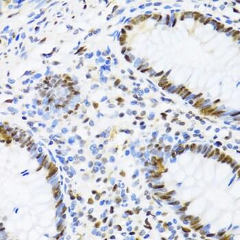 UAP56 Antibody in Immunohistochemistry (Paraffin) (IHC (P))