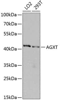 AGXT Antibody in Western Blot (WB)