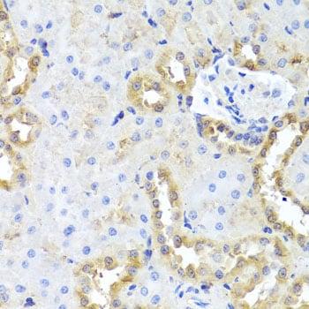 hCG beta-7 Antibody in Immunohistochemistry (IHC)