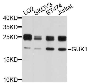 GUK1 Antibody in Western Blot (WB)
