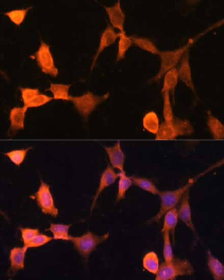 Calcyclin Antibody in Immunocytochemistry (ICC)