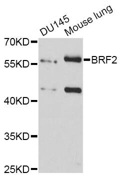 BRF2 Antibody in Western Blot (WB)
