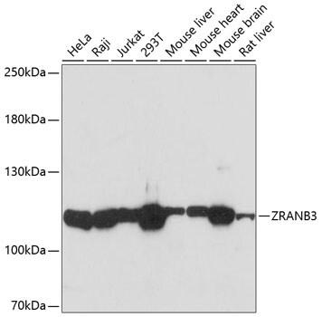ZRANB3 Antibody in Western Blot (WB)
