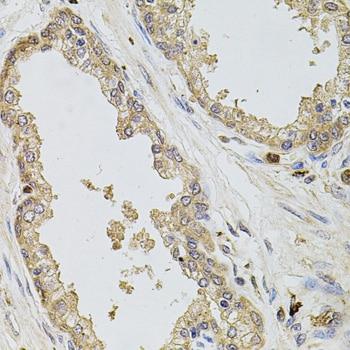 Kir3.1 (KCNJ3) Antibody in Immunohistochemistry (Paraffin) (IHC (P))