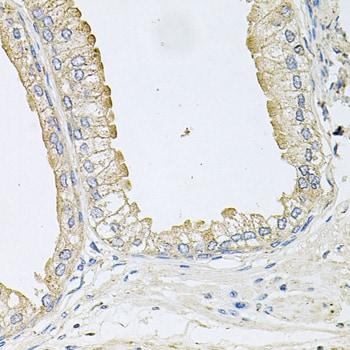 ANKH Antibody in Immunohistochemistry (Paraffin) (IHC (P))