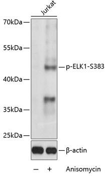 Phospho-ELK1 (Ser383) Antibody in Western Blot (WB)