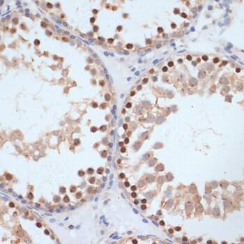 Phospho-BRCA1 (Ser1423) Antibody in Immunohistochemistry (Paraffin) (IHC (P))