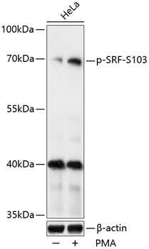 Phospho-SRF (Ser103) Antibody in Western Blot (WB)