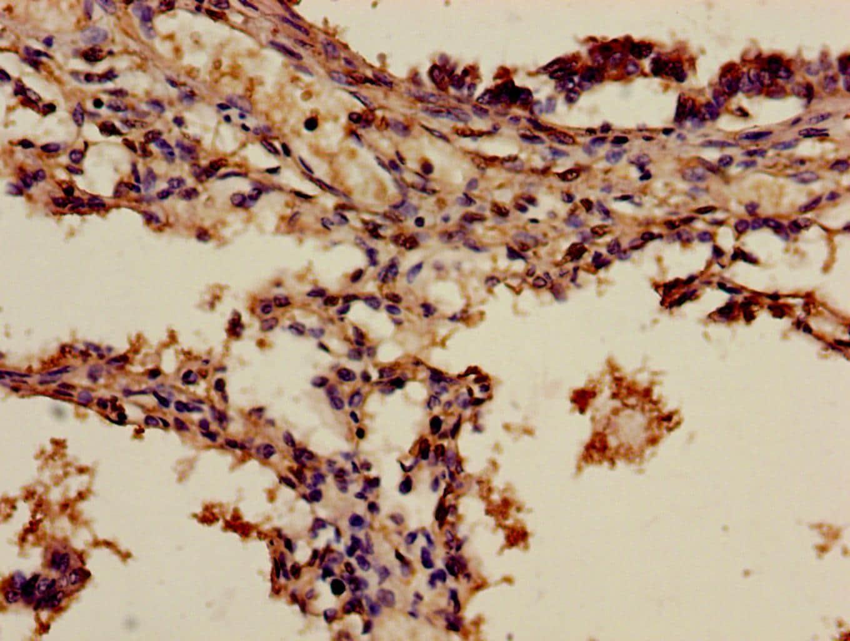 ADH7 Antibody in Immunohistochemistry (Paraffin) (IHC (P))