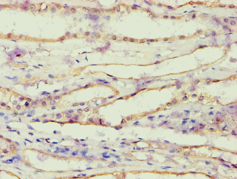 AKR1B10 Antibody in Immunohistochemistry (Paraffin) (IHC (P))