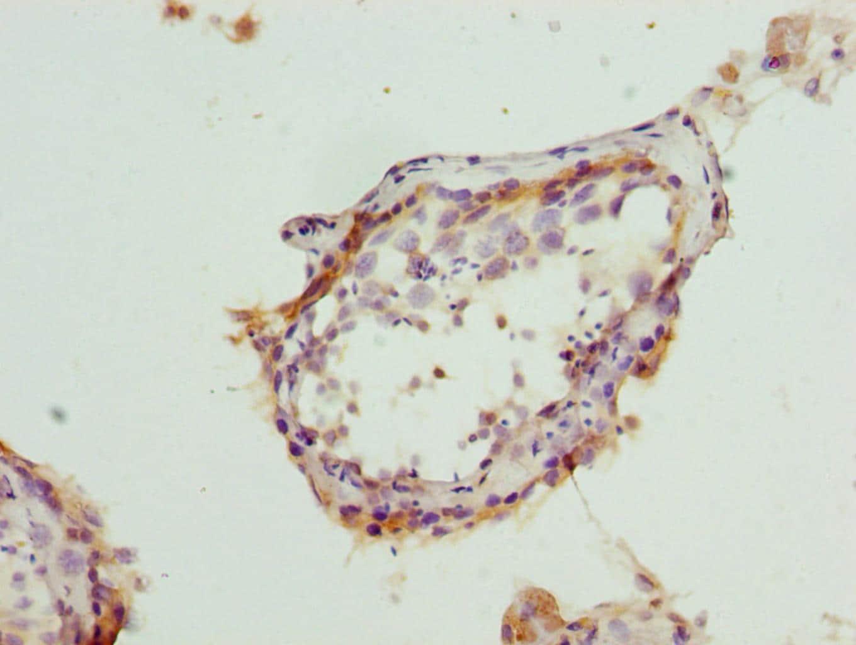 BAP29 Antibody in Immunohistochemistry (Paraffin) (IHC (P))