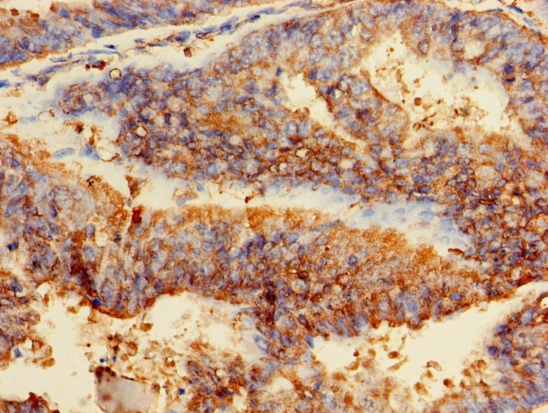 GPI Antibody in Immunohistochemistry (Paraffin) (IHC (P))