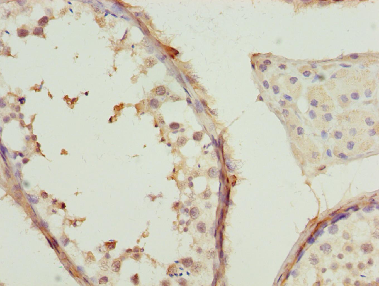 TCP-1 beta Antibody in Immunohistochemistry (Paraffin) (IHC (P))