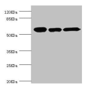 TCP-1 beta Antibody in Western Blot (WB)