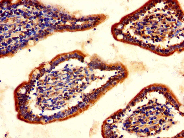 ChAT Antibody in Immunohistochemistry (Paraffin) (IHC (P))