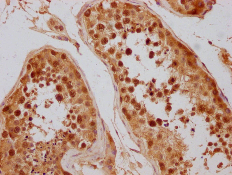 CAS Antibody in Immunohistochemistry (Paraffin) (IHC (P))