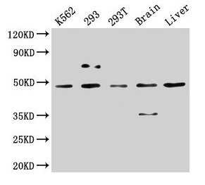CK1 delta Antibody in Western Blot (WB)