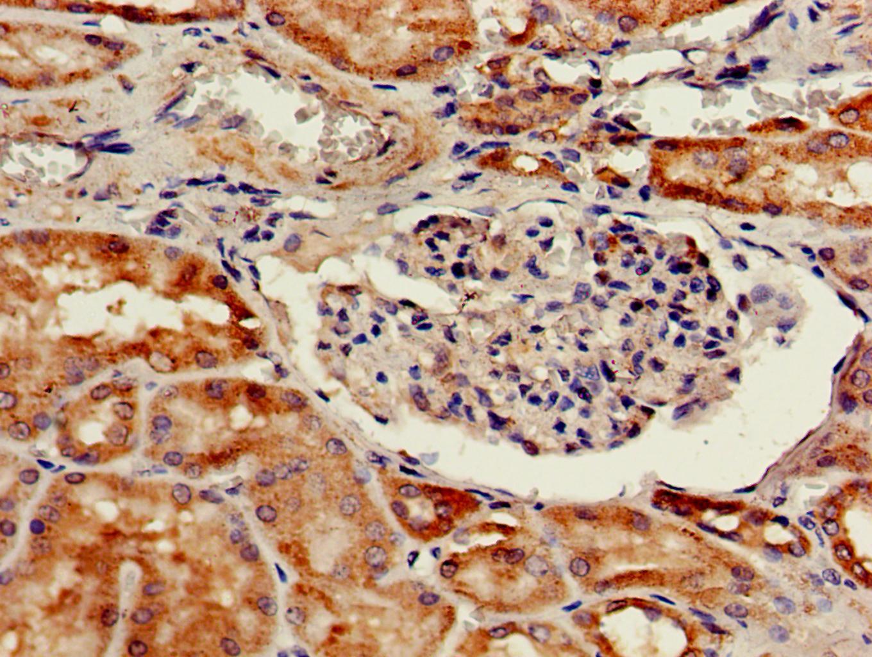 Cathepsin H Antibody in Immunohistochemistry (Paraffin) (IHC (P))