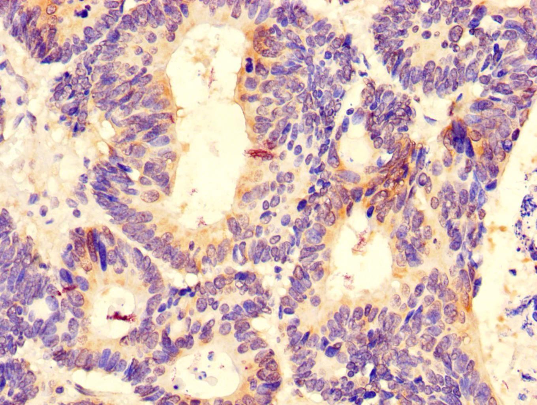DDX6 Antibody in Immunohistochemistry (Paraffin) (IHC (P))